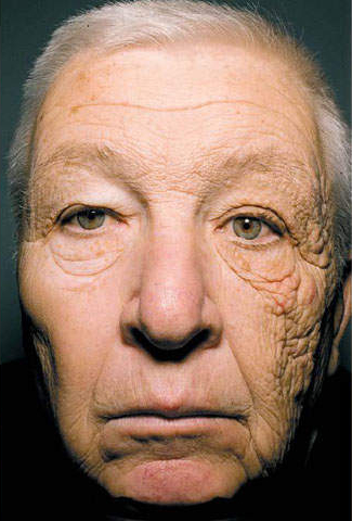 This long haul trucker, famously featured in the New England Journal of Medicine, has unilateral dermatoheliosis, which means one sided sun damage to his skin. With the sun shining through the driver's side window over the years, the left side of his face has received more sun exposure than the right side.