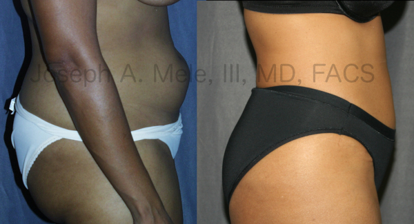 Abdominoplasty (Tummy Tuck) before and after pictures - side view