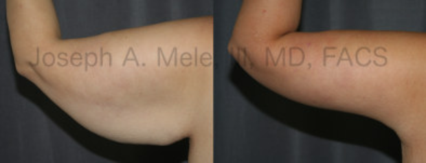 Post Bariatric Plastic Surgery - Arm Lift Brachioplasty