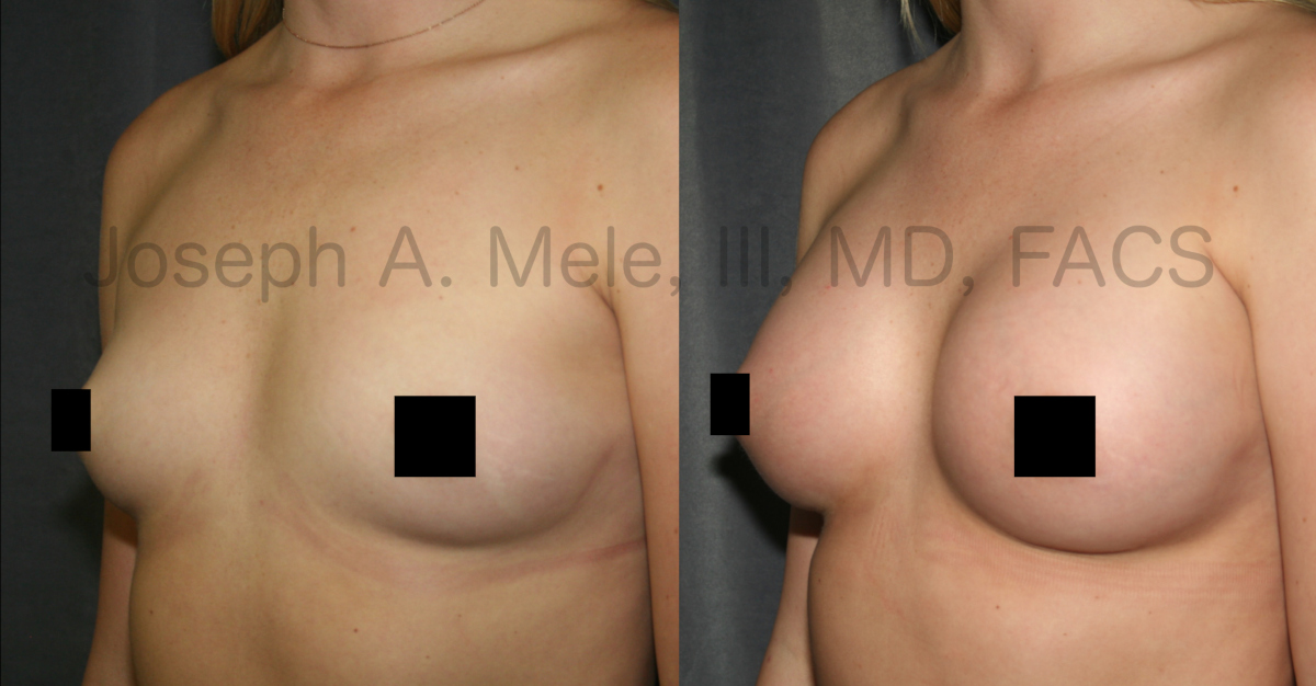Breast Augmentation with Breast Implants before and after pictures