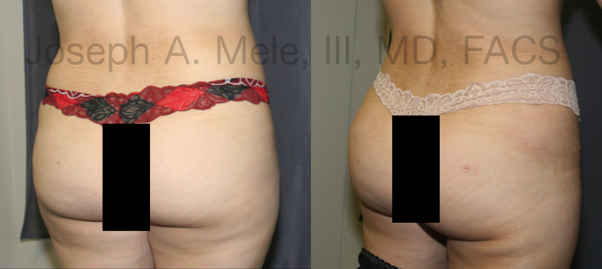 Brazilian Buttocks Lift before and after photos (BBL)