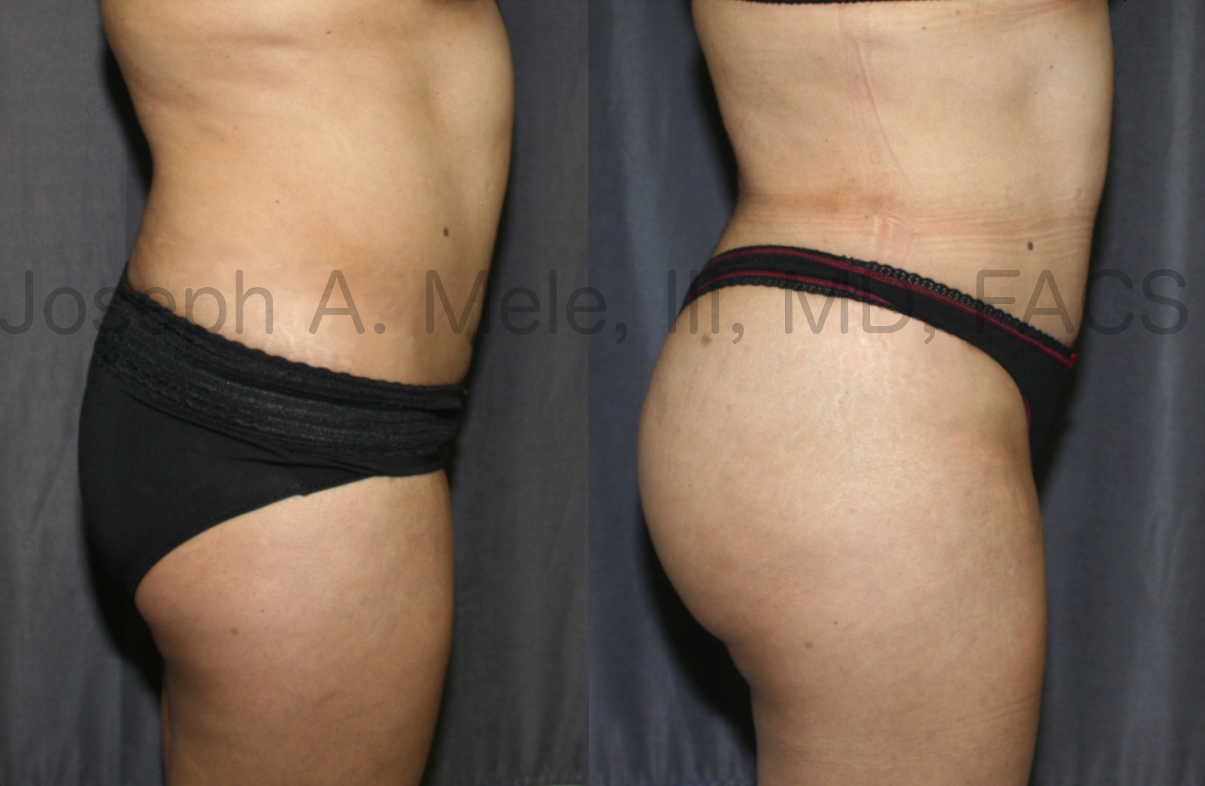 BBL side view - Brazilian Butt Lift before and after pictures