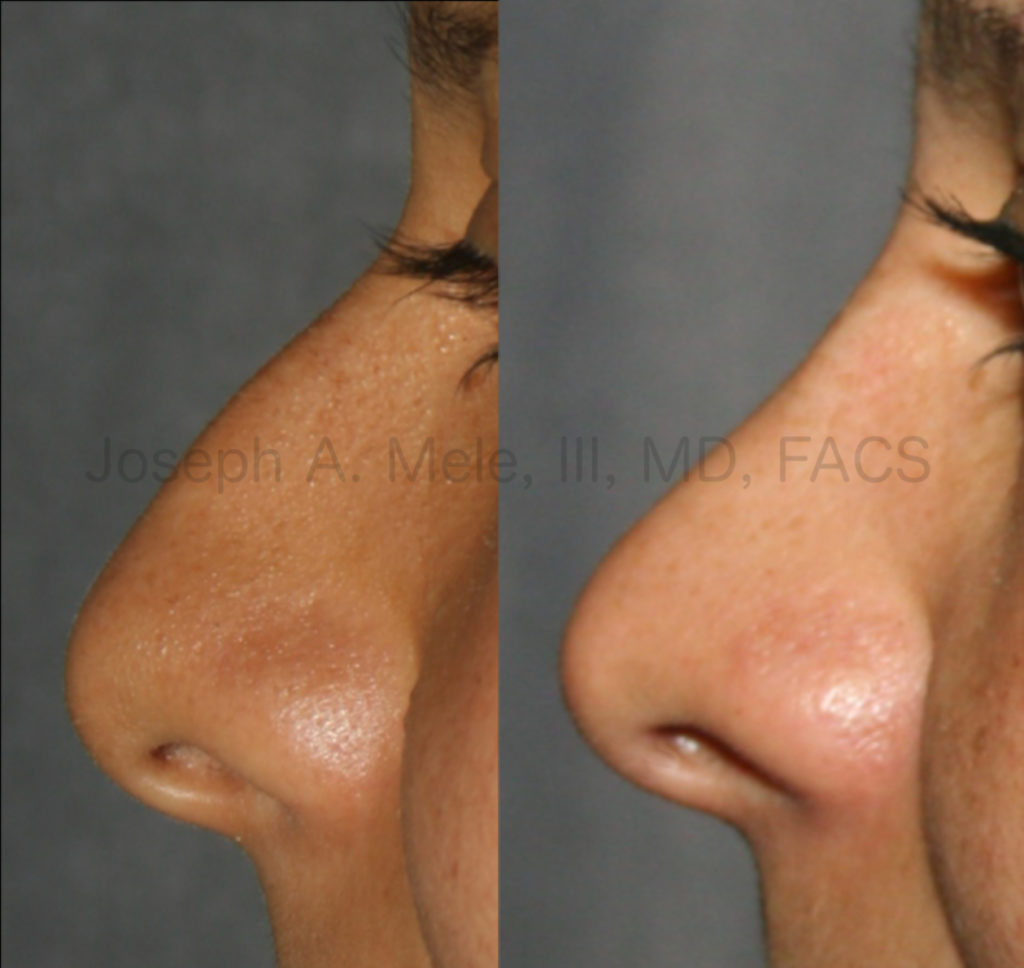 Rhinoplasty before and after pictures - raising the tip