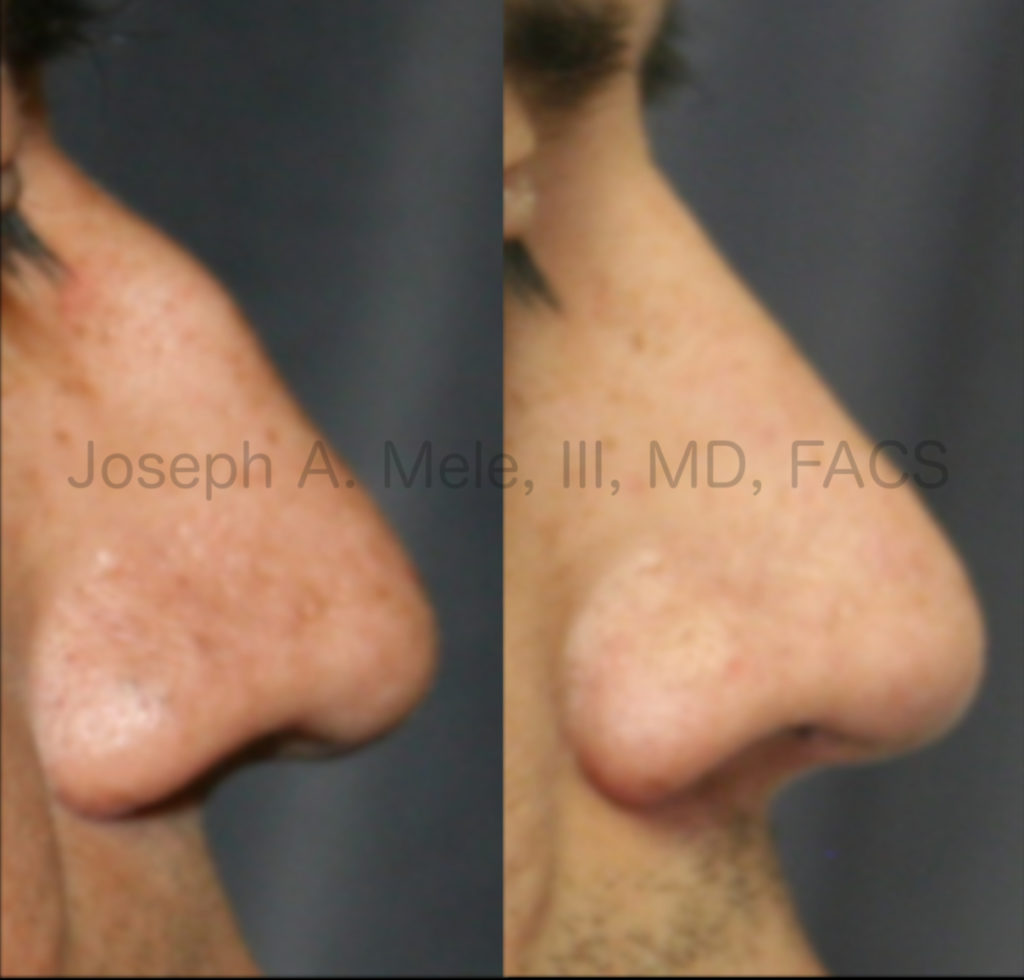Rhinoplasty before and after pictures - removing big bump