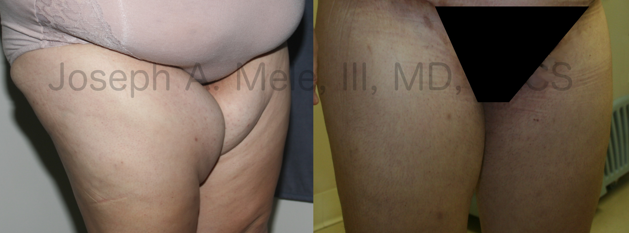 Thigh lift before and after pictures (thighplasty)