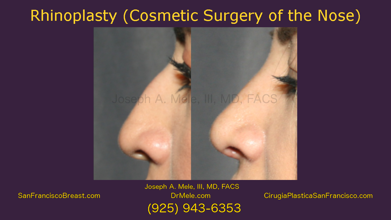 Rhinoplasty Videos Presentation featuring Nose Job before and after pictures