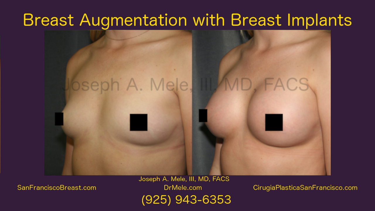 Breast Augmentation Before and After Video