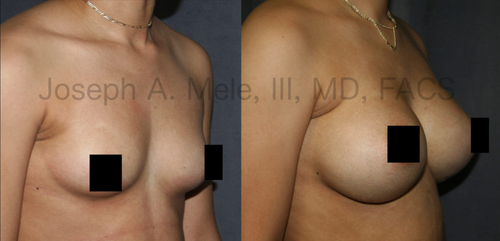 Breast Augmentation Before and After Photos (Censored)