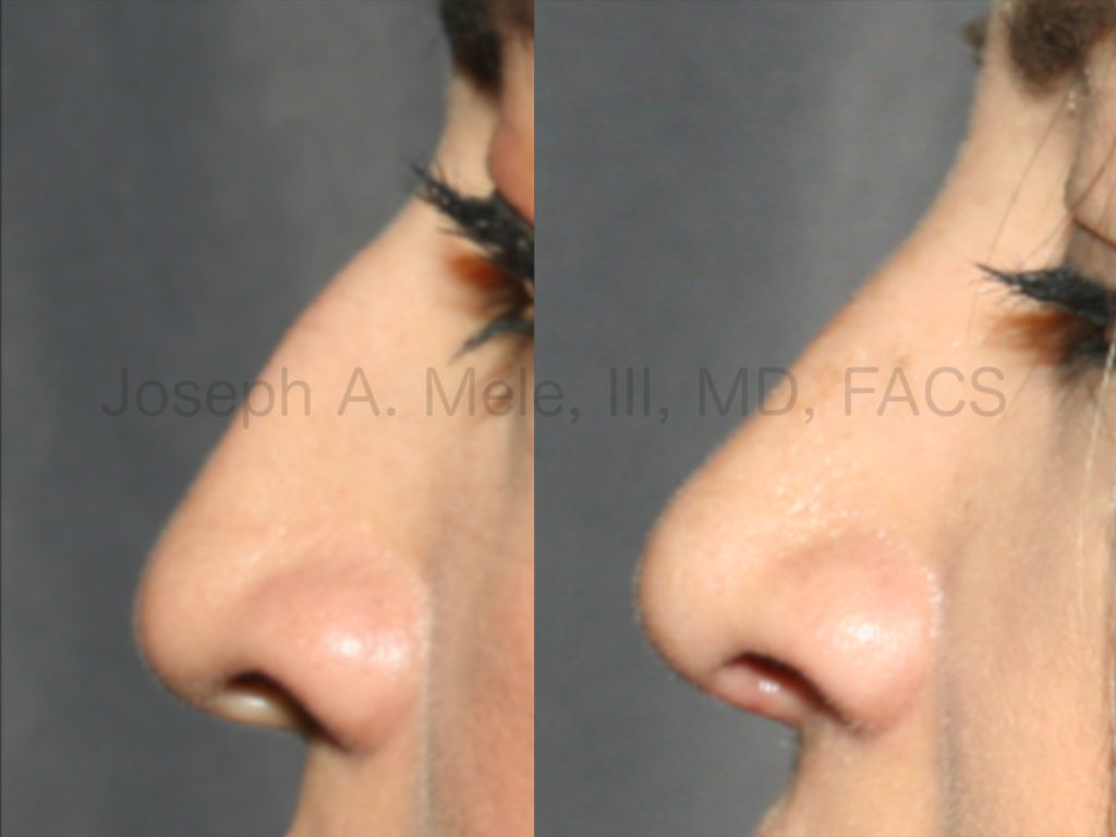 Rhinoplasty Before and After Pictures (Nose Job to Removal the Bump)