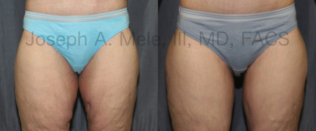 Thigh Lift Before and After Pictures with Horizontal Groin Incision