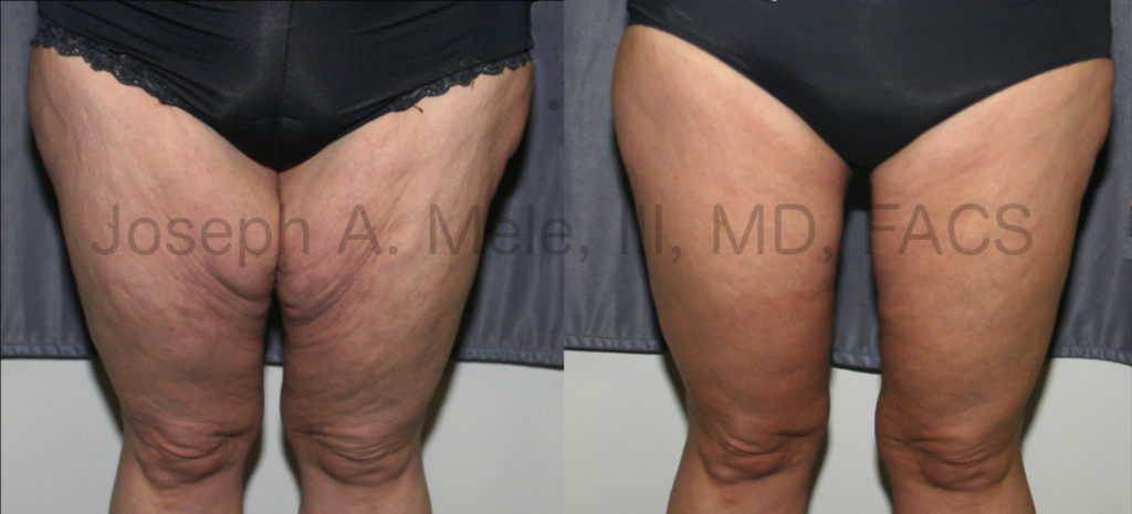Thigh Lift Before and After Pictures with Vertical Medial Thigh Incision