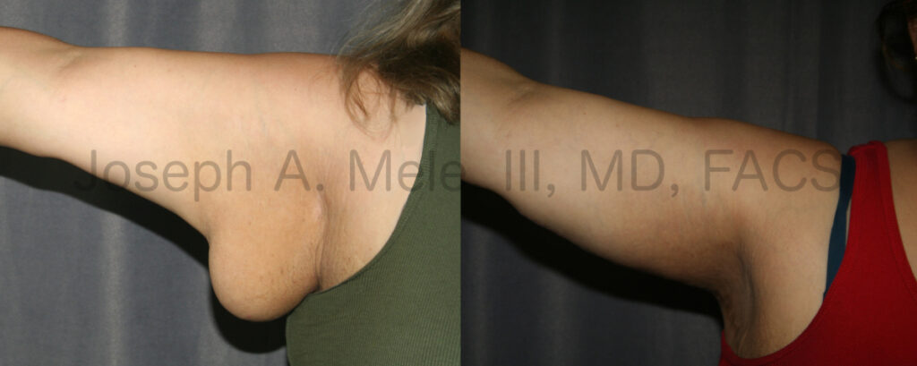 Brachioplasty Before and After Pictures (Arm Lift)