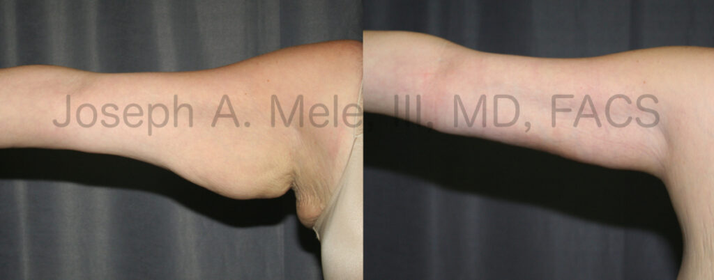 Arm Lift Before and After Pictures (Brachioplasty)