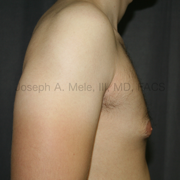 Gynecomastia reduction for tubular breasts in a man