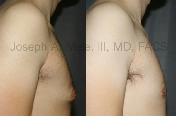 Gynecomastia reduction before and after photos of male breast reduction for tubular breasts.