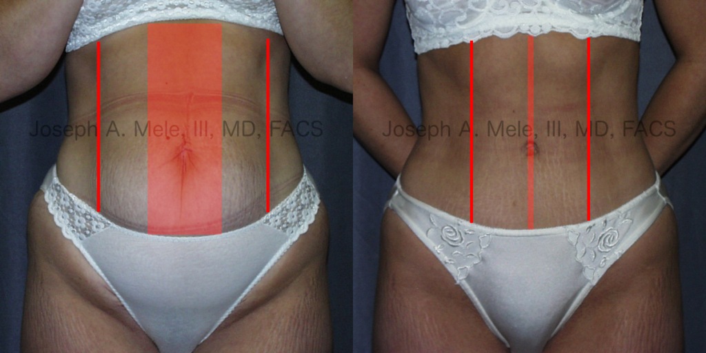 Abdominoplasty Muscle Tightening Before and After Pictures