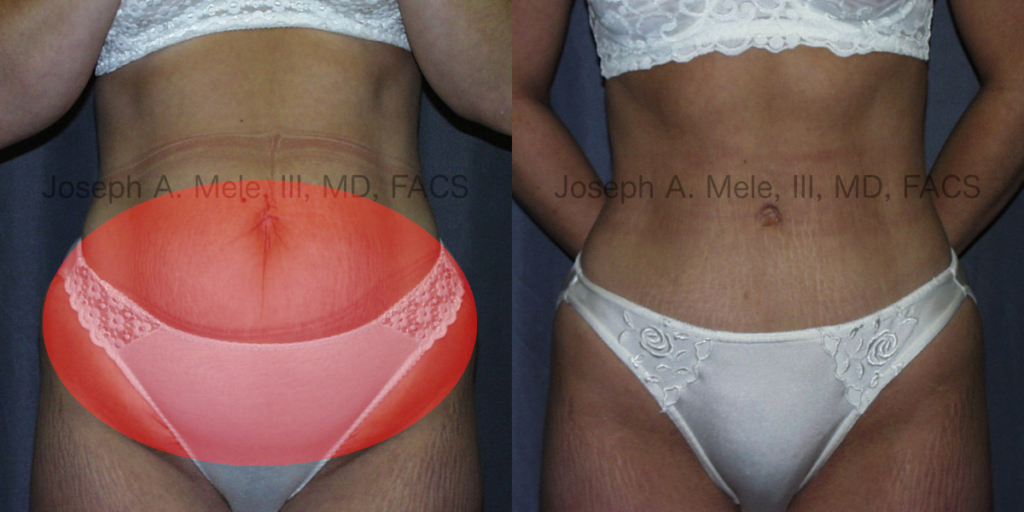 Abdominoplasty - Removal of Disproportional Fat