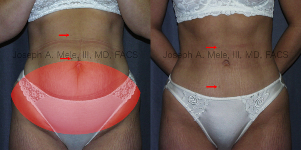 Abdominoplasty - removes any excess skin from the lower abdomen before and after pictures