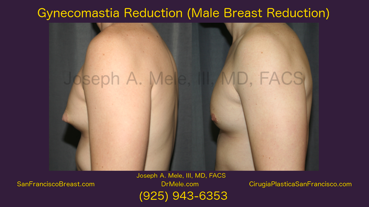 Gynecomastia Reduction Before and After Pictures Video (Male Breast Reduction)