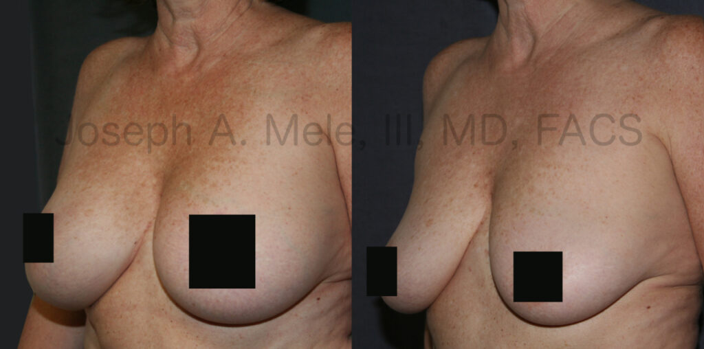Breast Implant Removal Before and After Pictures