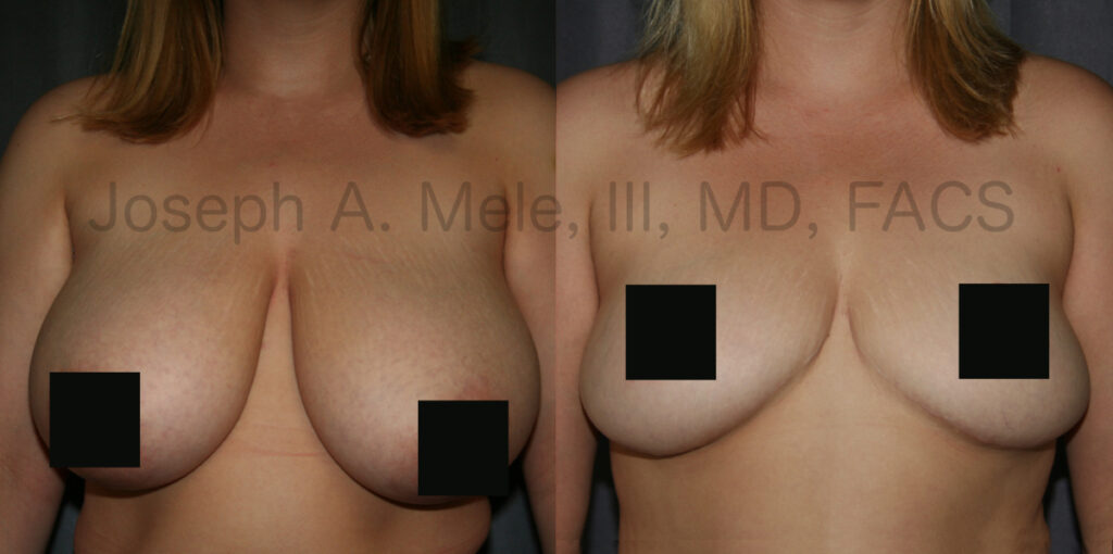 Breast Reduction Before and After Pictures - Front View