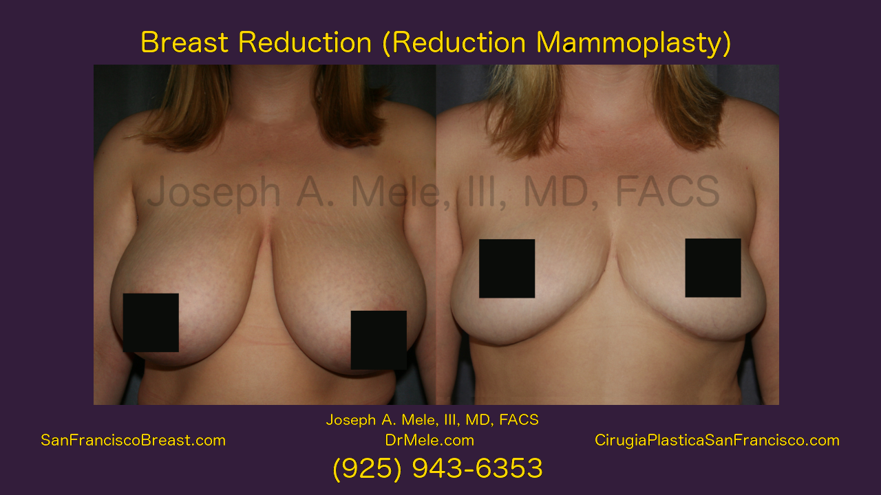 Great Reduction Before and After Pictures - Female Reduction Mammoplasty video presentation