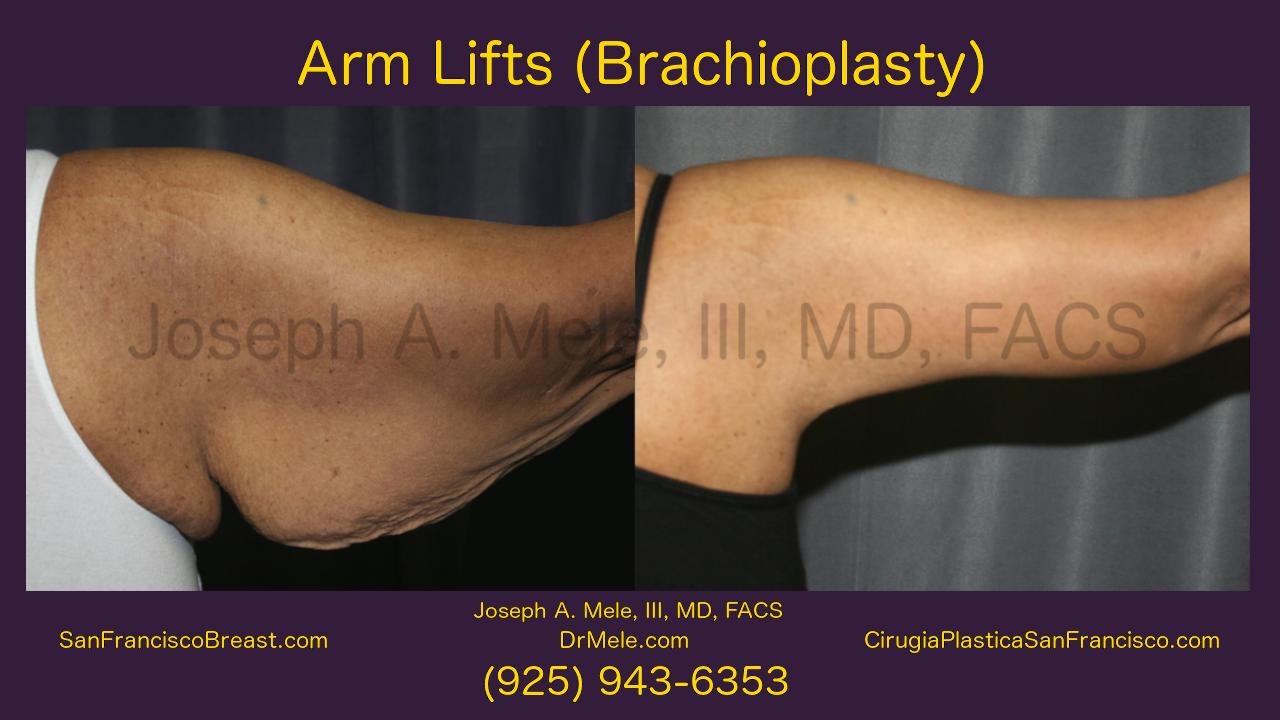 Arm Lift Video Presentation with Brachioplasty Before and After Pictures