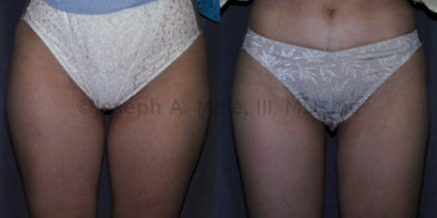 Liposuction of the Thighs before and after pictures (Female Saddlebags)