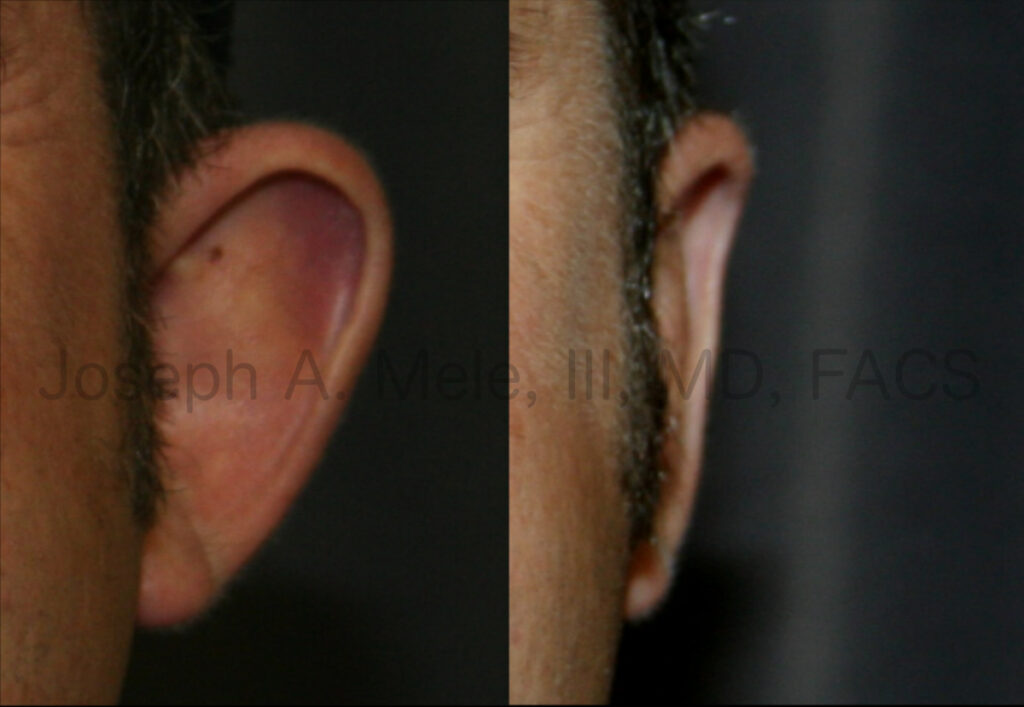 Otoplasty before and after pictures for prominent ears.