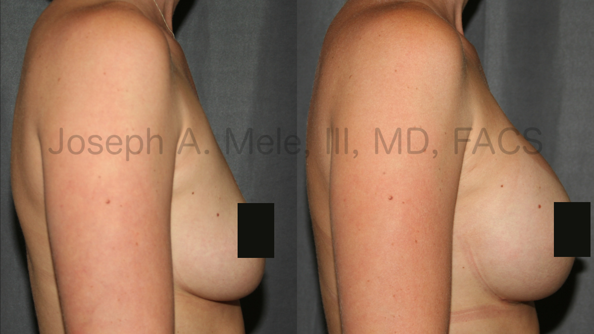 Breast Augmentation Before and After Pictures - Gummy Bear Breast Implants