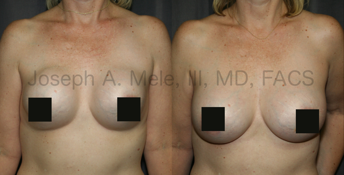 Breast Implant Revision Surgery before and after pictures Breast Revision Surgery for capsular contracture
