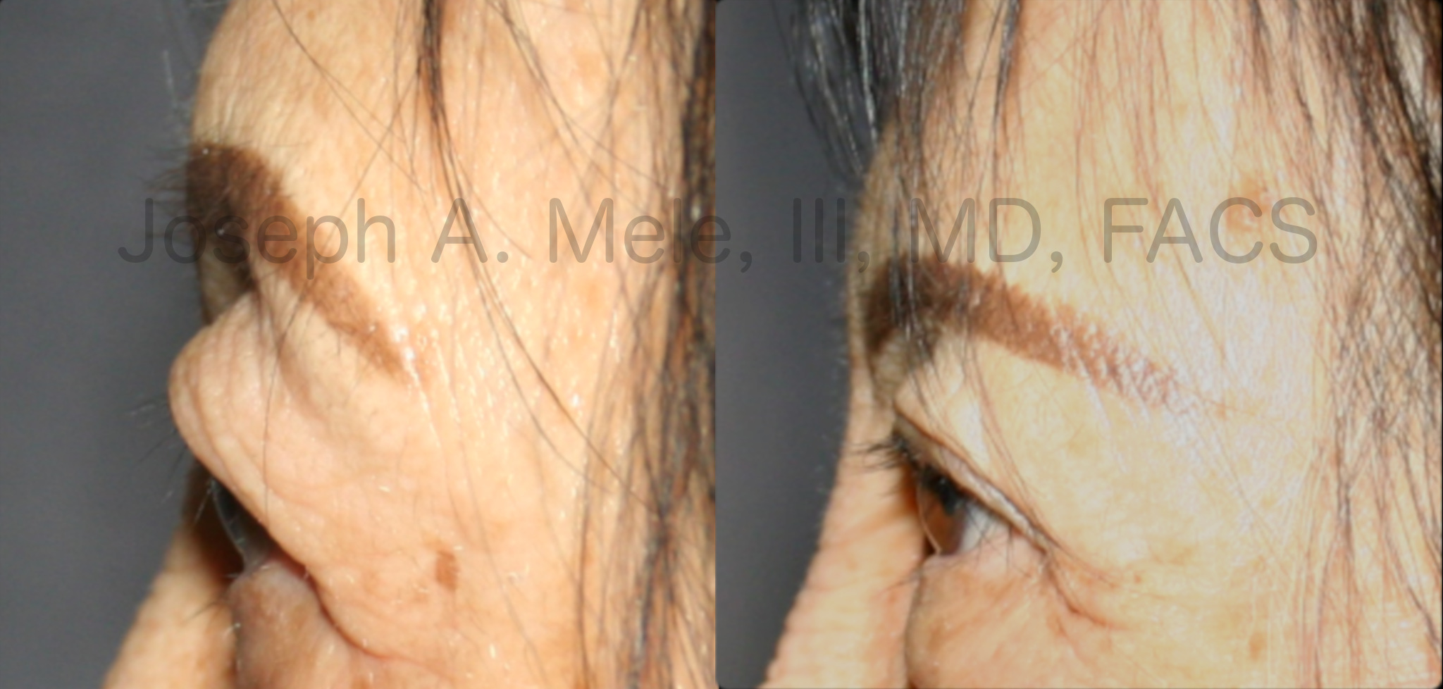 Upper blepharoplasty before and after photos - cosmetic eyelid lift of the upper eyelids