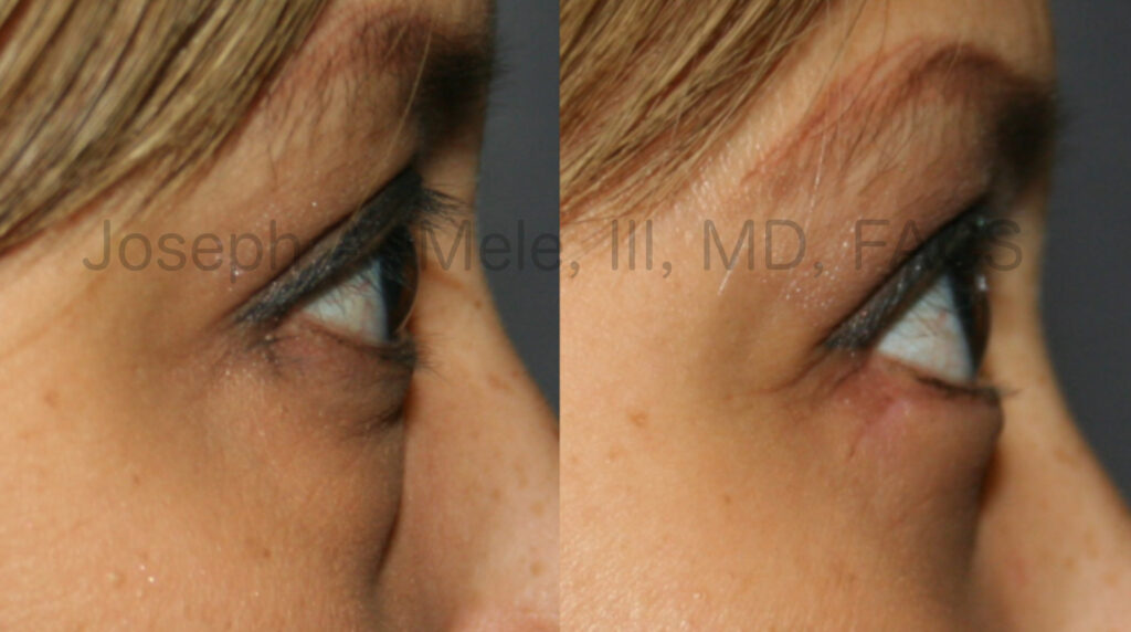 Lower blepharoplasty - cosmetica lower eyelid lift