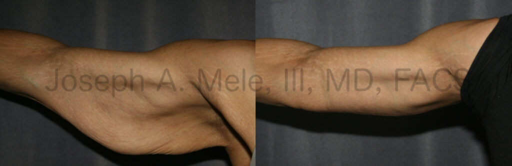 Brachioplasty - Arm lift surgery after weight loss before and after pictures