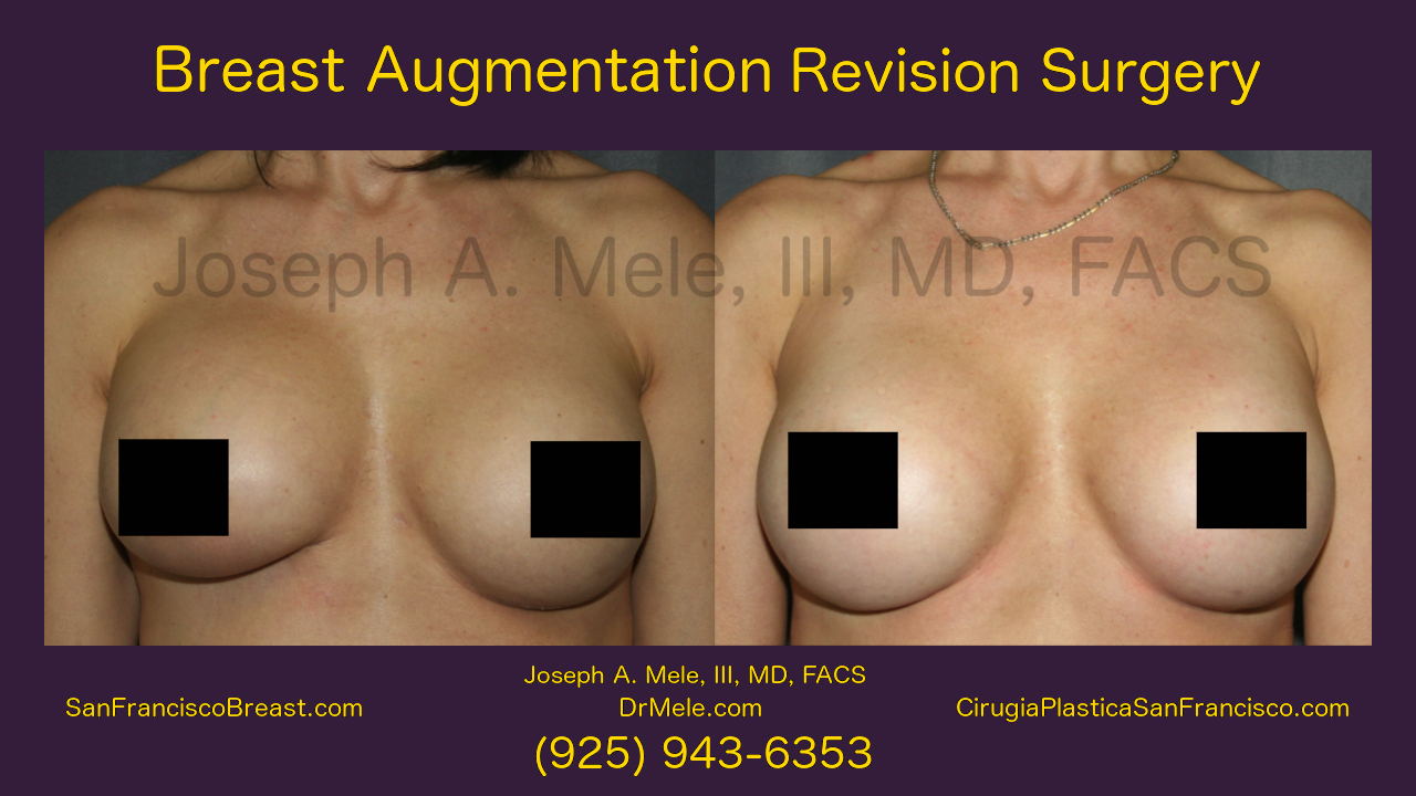 Breast Augmentation Revision Surgery Video Presentation with before and after pictures.