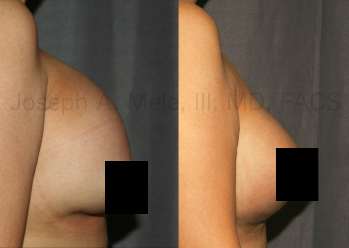 Breast Augmentation Revision Surgery before and after pictures