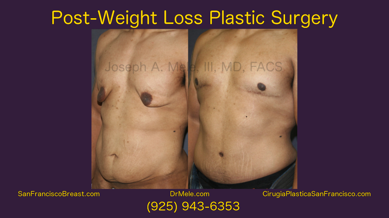 Post Bariatric Plastic Surgery Video - Lower Body Lift, Tummy Tuck with Male Breast Reduction
