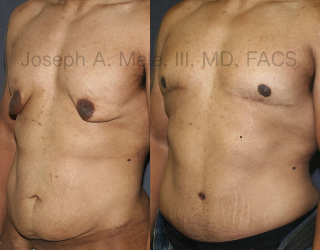 Breast and Body Lifts after massive weight loss before and after pictures