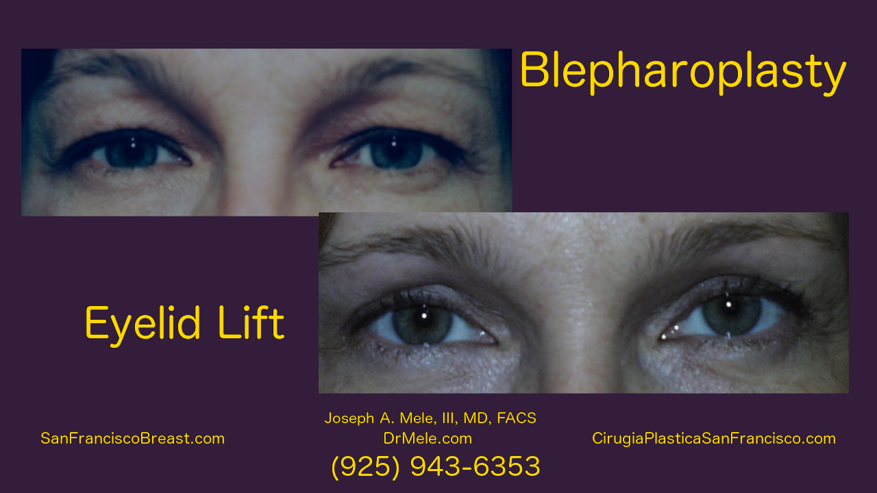 Blepharoplasty Video with before and after pictures and Asian double eyelid surgery