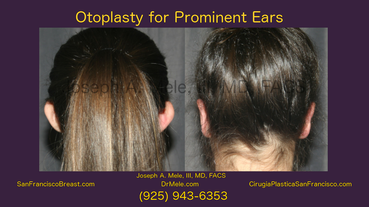 Otoplasty for Prominent Ears - Video presentation with before and after pictures