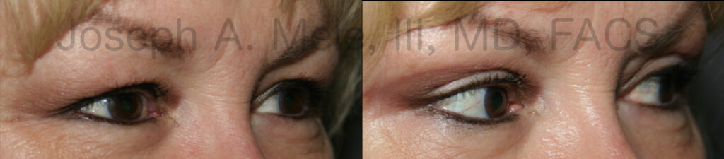 Eyelid Lift (Blepharoplasty) for Tired Eyes before and after photos