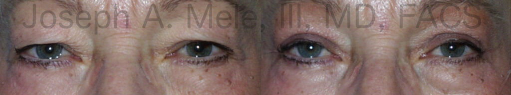 Asian Eyelid Lift (Blepharoplasty) for Tired Eyes before and after photos