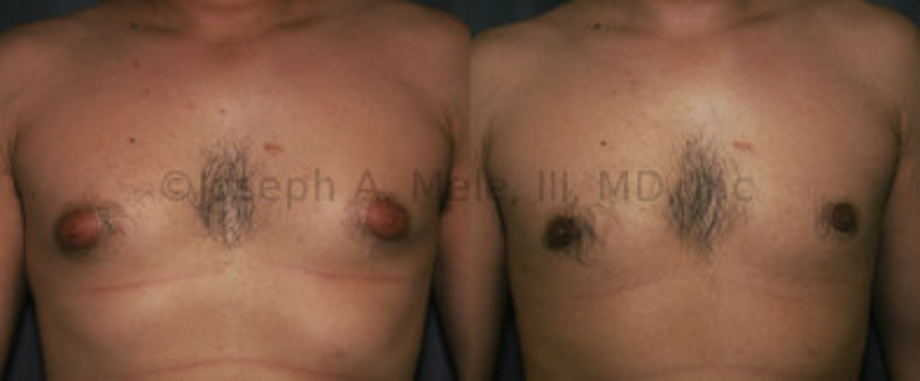 Gynecomastia Reduction Surgery before and after pictures - Liposuction and Gland Resection