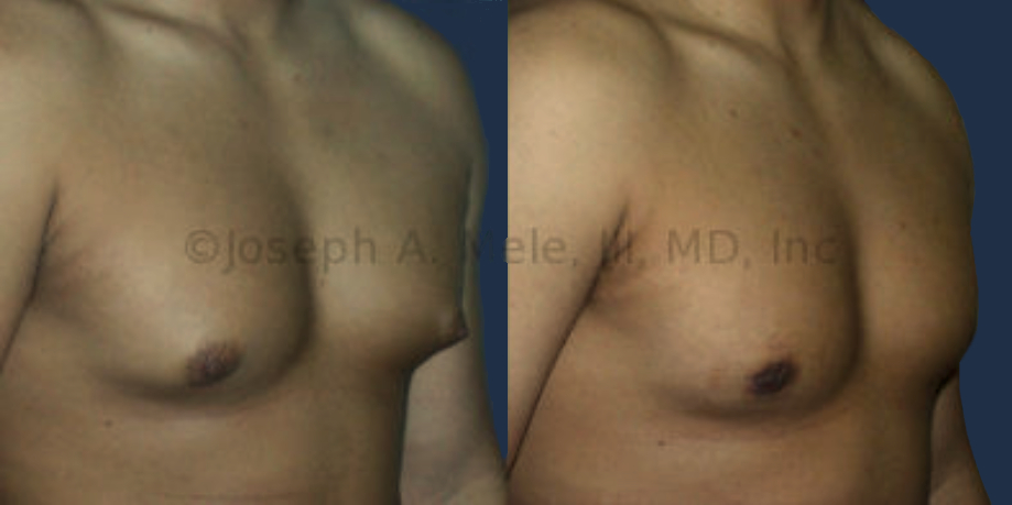 Male Breast Reduction before and after picture (gynecomastia reduction surgery)