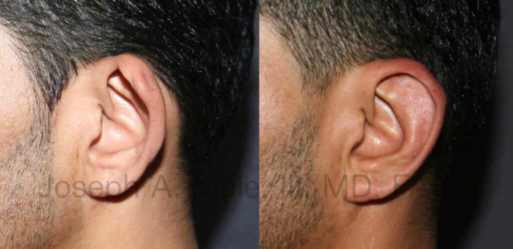 Otoplasty before and after pictures - cosmetic ear surgery for the correction of cupped (lop) ears (man)