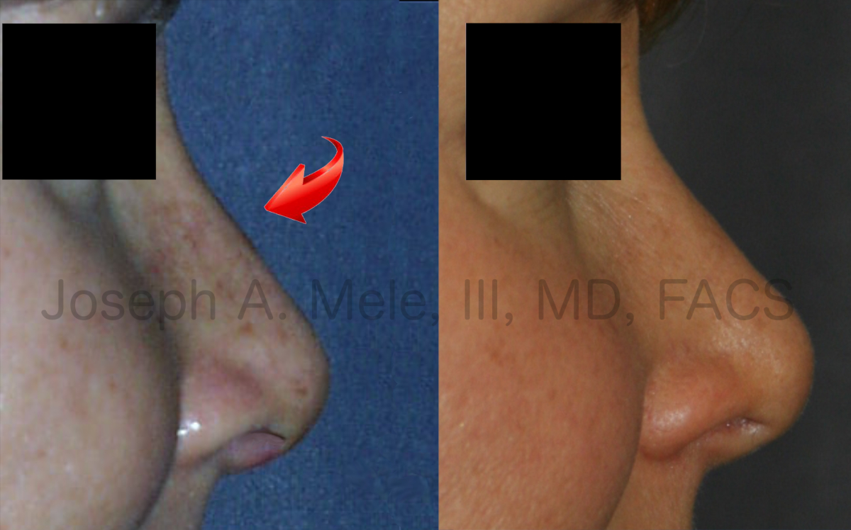 Rhinoplasty recovery photos. The difference between a week and seven years after surgery are shown.