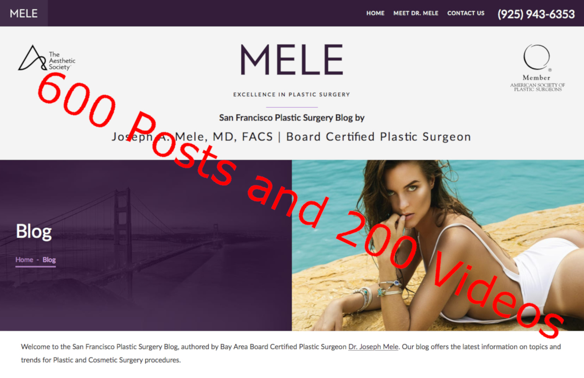 San Francisco Plastic Surgery Blog Reaches 600 posts and 200 Plastic Surgery Videos