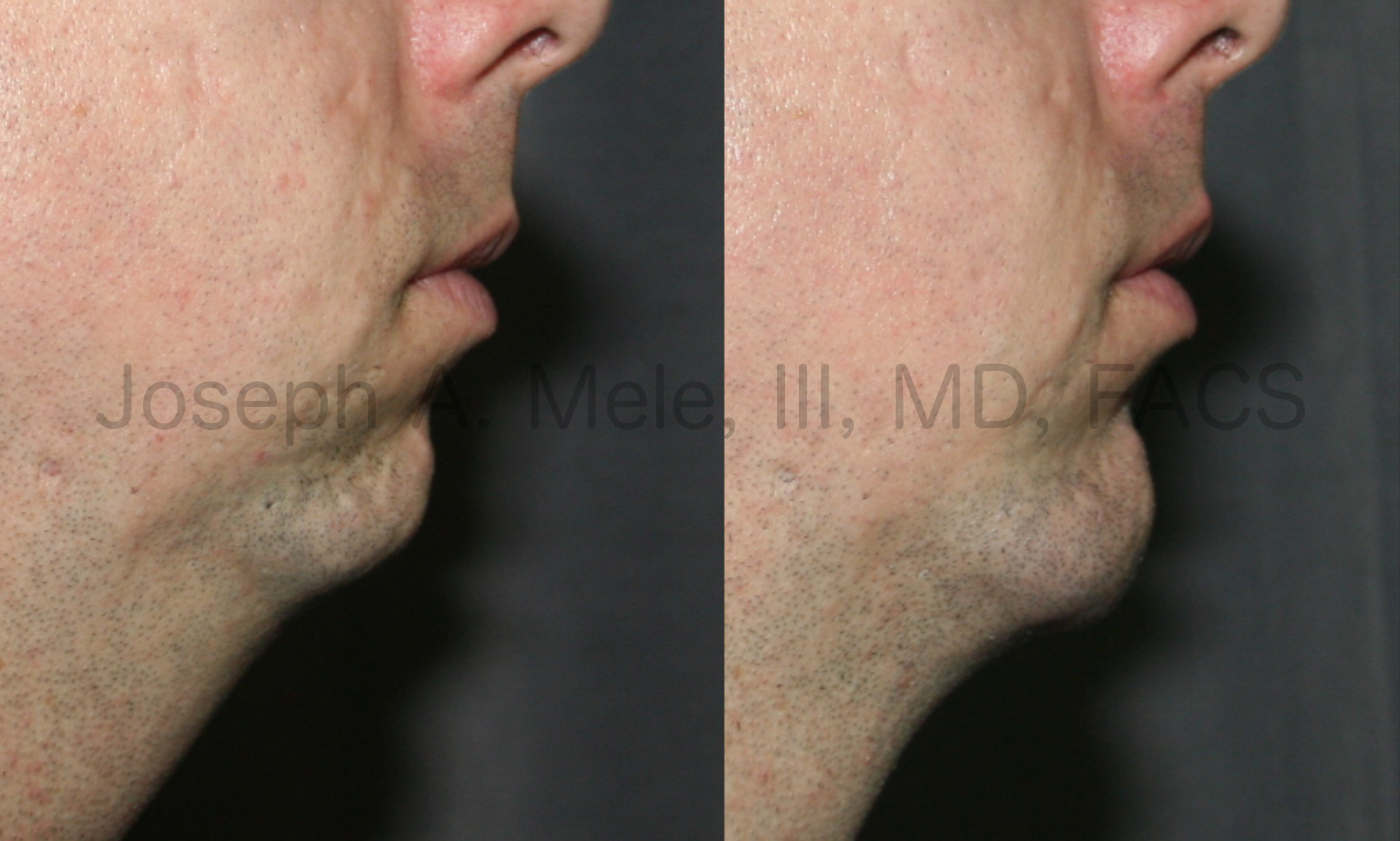 Male Chin Augmentation before and after pictures (Chin Implant)