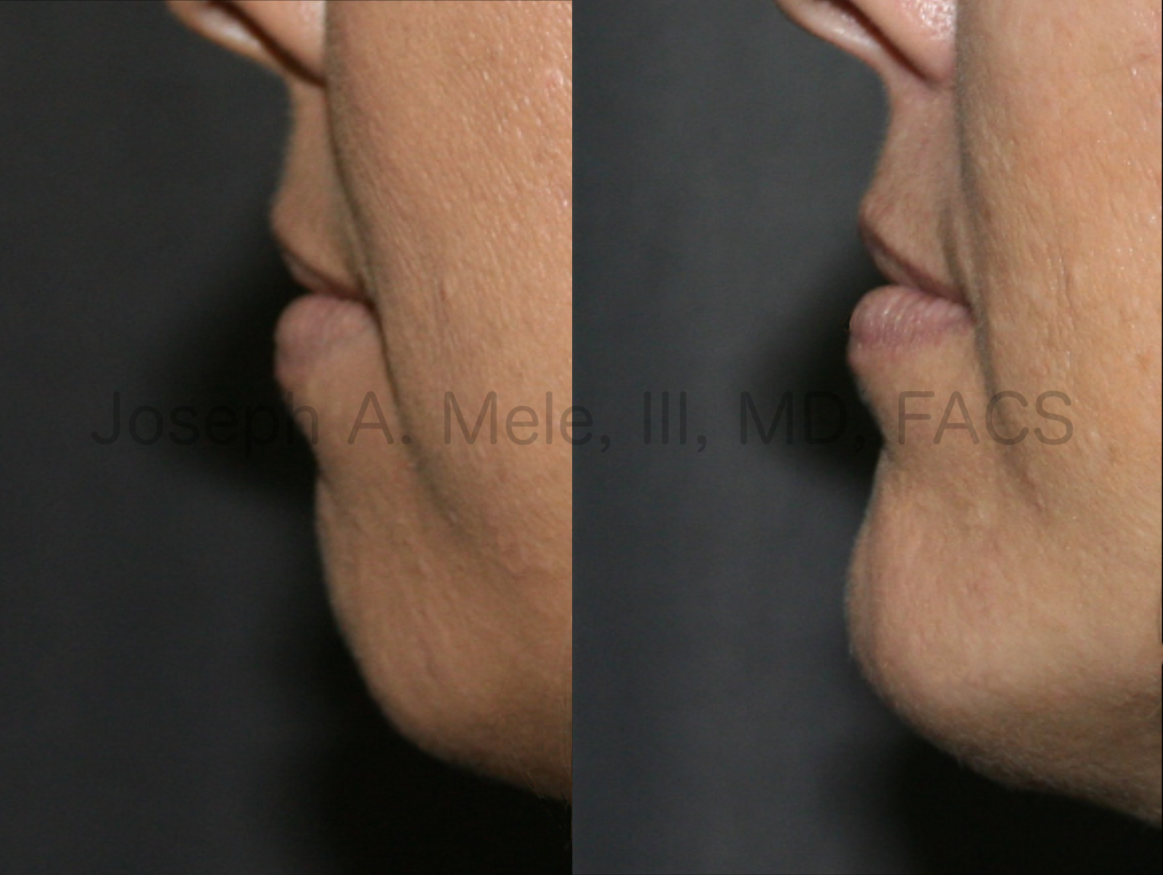 Chin Augmentation before and after pictures (Chin Implant)