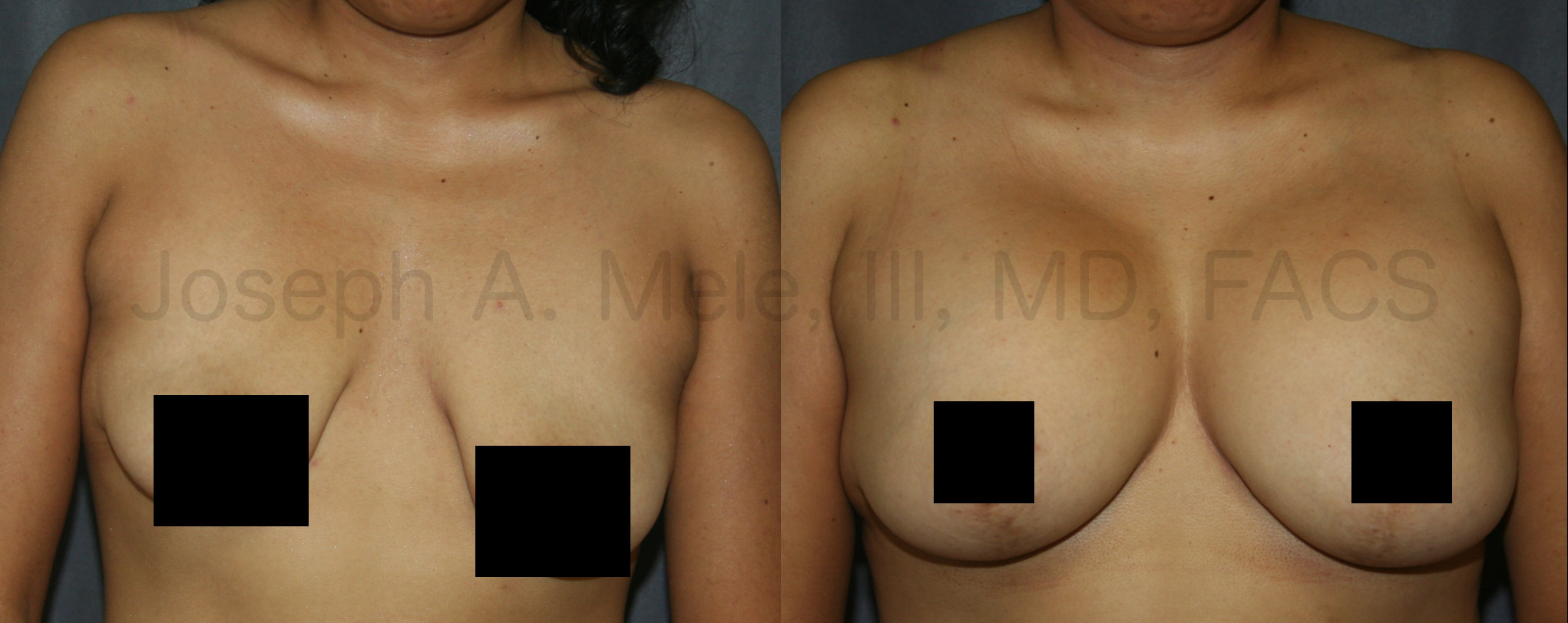 Breast Augmentation Breast Lift before and after pictures (mastopexy augmentation)